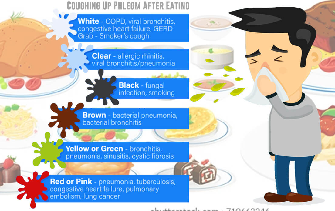 Why do I get Phlegm After Eating: And What Causes Phlegm